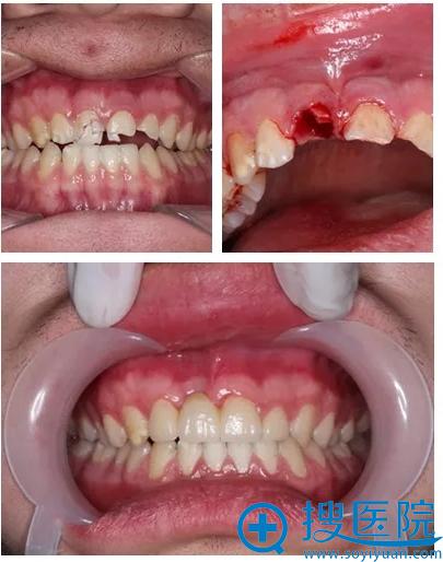 上海九院上前牙修复种植案例