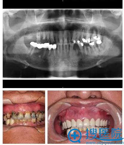 上海九院牙齿种植修复案例