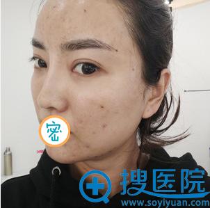 面部脂肪填充术后一周照片