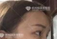 塌鼻三姐妹相约找杭州格莱美张龙和张树平做了自体肋软骨隆鼻