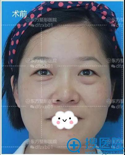 郑州东方整形美容医院祛眼袋双眼皮手术前