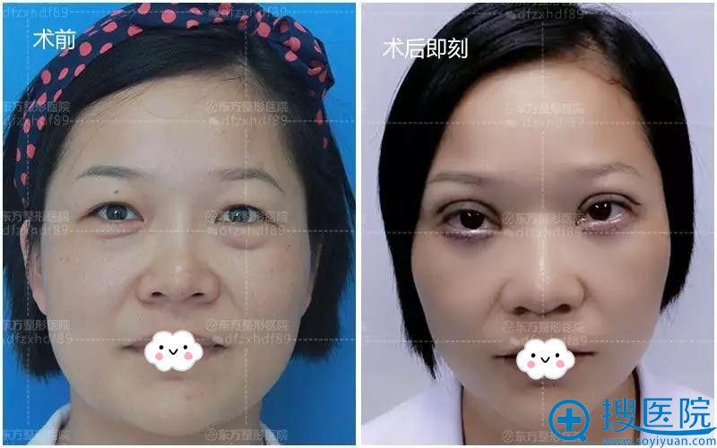 郑州东方去眼袋+双眼皮真人案例术后即刻效果