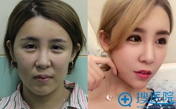 北京新星靓自体脂肪填充面部真人案例