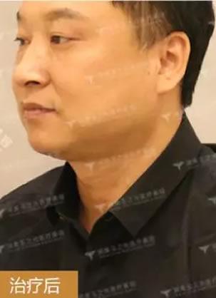 商务男士颈纹泛滥 润美玉之光宋秋丽PDH中胚层助其成功去颈纹