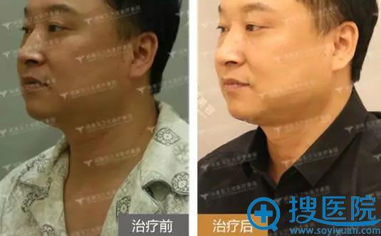 润美玉之光男士祛颈纹前后效果对比图