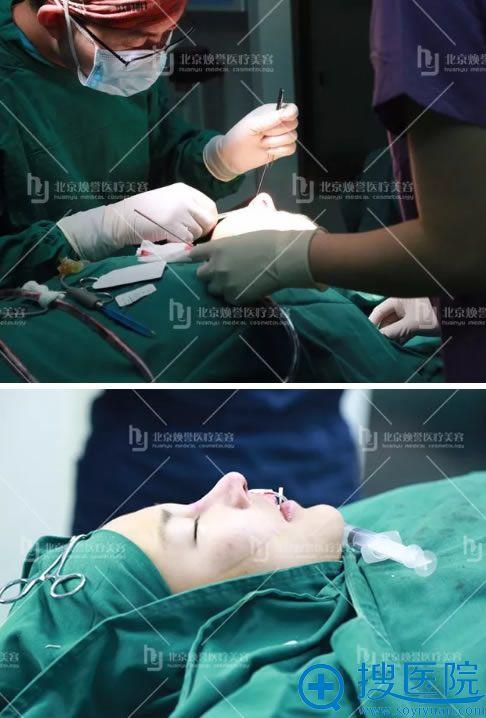 北京焕誉鼻综合整形手术过程