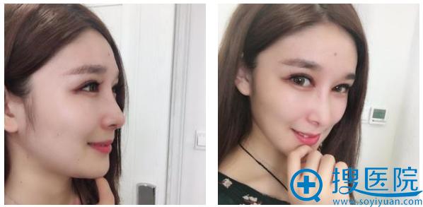 大连新华美天王大太做鼻子怎么样?看我的隆鼻案例