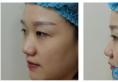 对比了重庆西南医院整形科王量和李喆的案例后选李喆做了隆鼻