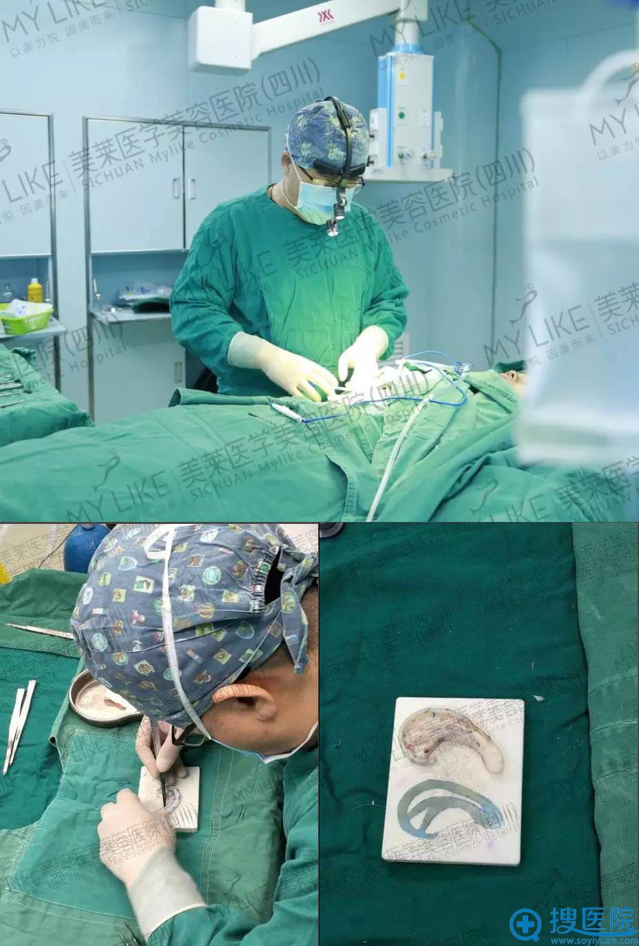 四川美莱熊猛耳畸形再造手术过程