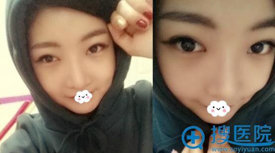 韩国巴诺巴奇整形外科医院双眼皮+隆鼻效果