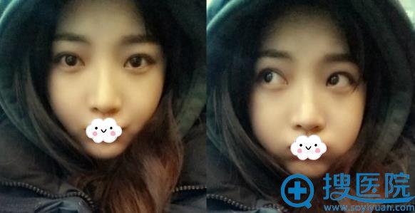 韩国巴诺巴奇整形外科医院双眼皮案例