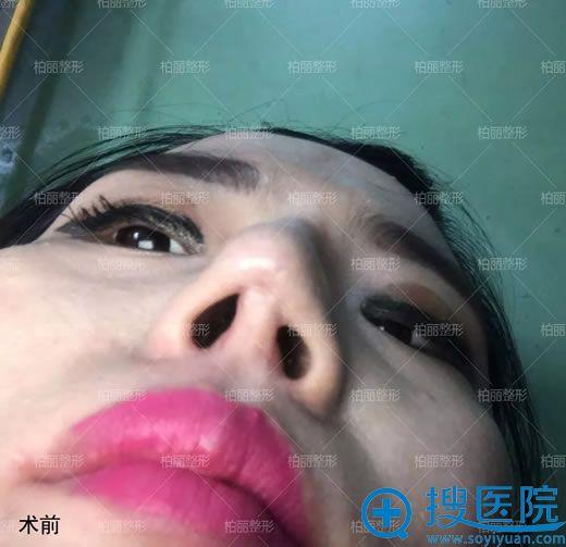 修复3次都没修复成功的鼻子