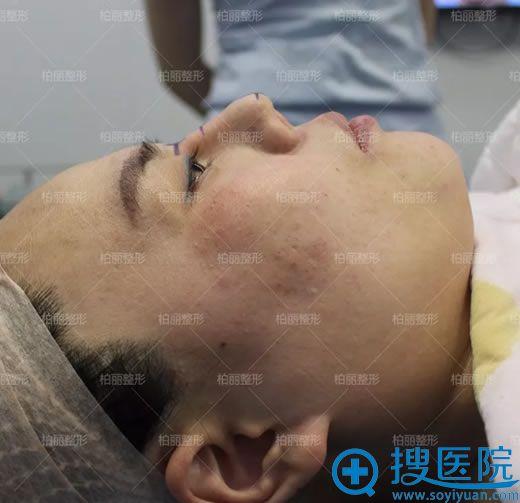 北京李劲良设计鼻综合修复方案