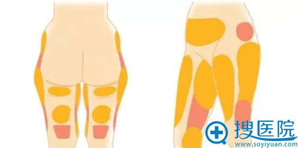 韩国巴诺巴奇腹部/大腿吸脂手术6折优惠活动