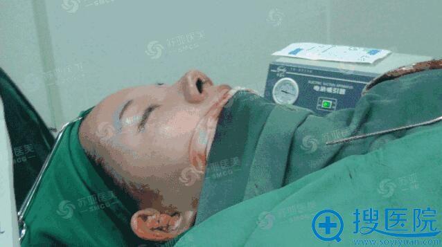 无锡苏亚美联臣整形医院张蕾医生隆鼻中