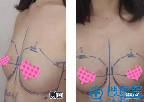 做隆胸手术前的照片