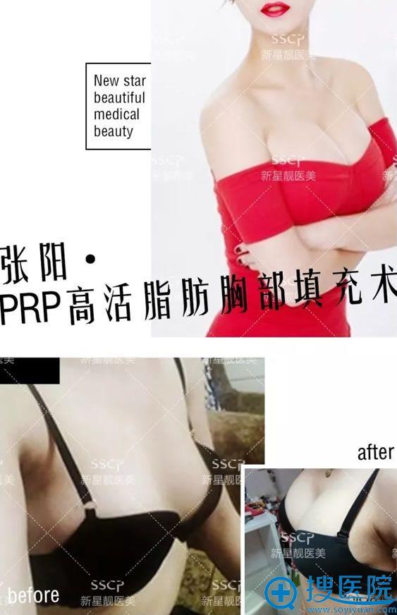 新星靓张阳PRP高活脂肪胸部填充术案例
