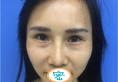 济南隅美尹斌全面部脂肪填充手术改善了我脸上没肉显老的状况