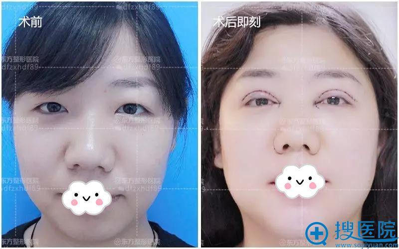 郑州东方双眼皮+假体丰下巴术前术后即刻对比