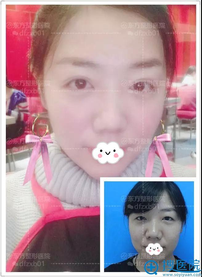 郑州东方假体垫下巴+双眼皮术后1月效果
