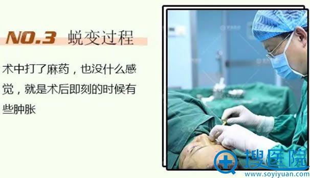 青岛魏邦敏做自体脂肪填充术过程