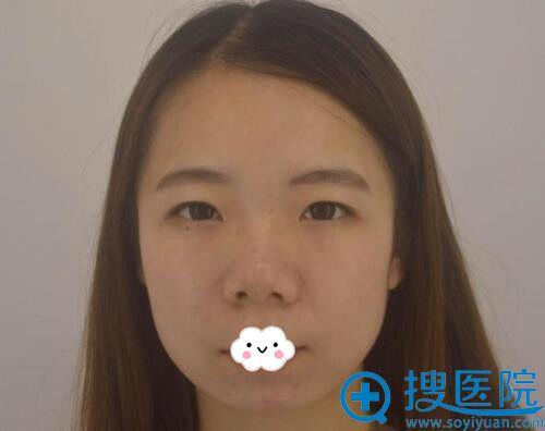 武汉美立方胡江伟玻尿酸隆鼻+垫下巴术前