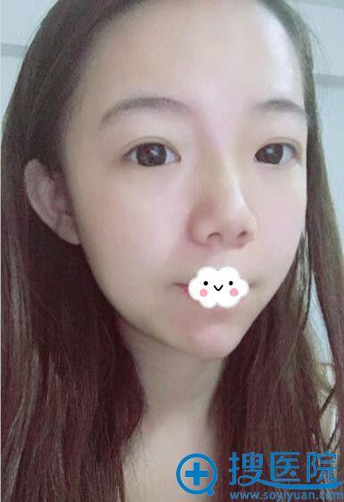 武汉美立方胡江伟玻尿酸隆鼻+垫下巴术后效果