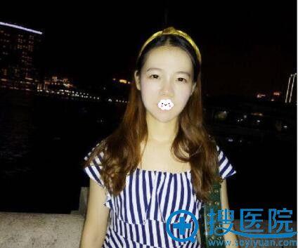 武汉美立方医疗美容医院玻尿酸隆鼻+丰下巴真人案例