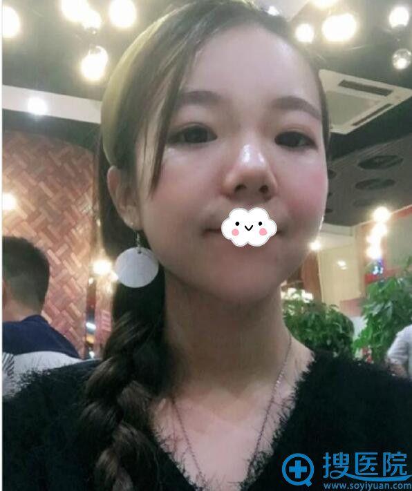 武汉美立方医疗美容医院玻尿酸隆鼻+垫下巴效果