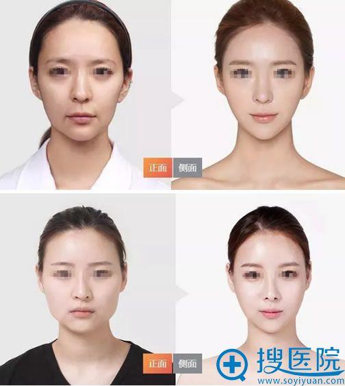 杭州华山连天美高俊明下颌角案例