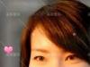 惠州瘦脸针哪家好?参考惠阳丽港注射瘦脸除皱瘦脸针恢复案例图