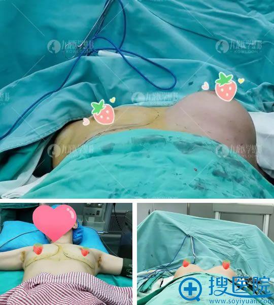做假体隆胸手术即刻效果对比图