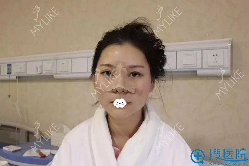 四川重庆美莱医学美容医院假体隆鼻术后3天