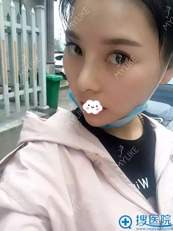 四川重庆美莱医学美容医院假体隆鼻术后案例