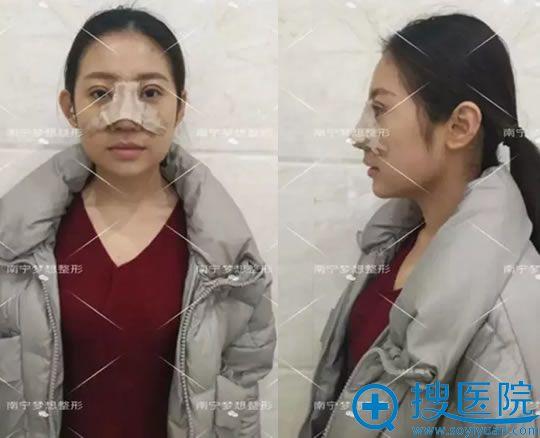 选南宁梦想做鼻修复手术3天效果