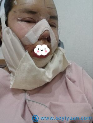 韩国巴诺巴奇双眼皮隆鼻失败修复术后效果