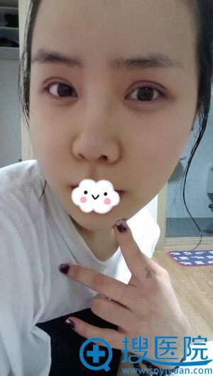 韩国巴诺巴奇整形医院瘦脸案例