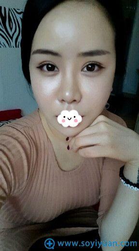 韩国巴诺巴奇整形医院双眼皮案例