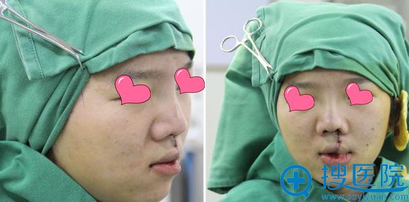 厦门海峡刘歆膨体鼻畸形修复术后即刻效果