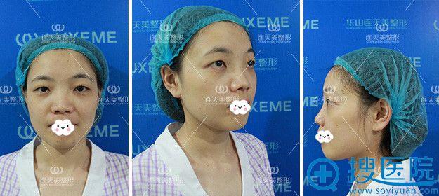 南京连天美眼部+鼻部综合整形术前