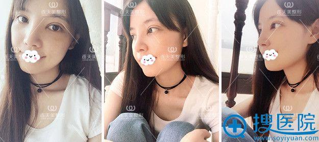 南京连天美双眼皮+假体隆鼻术后效果