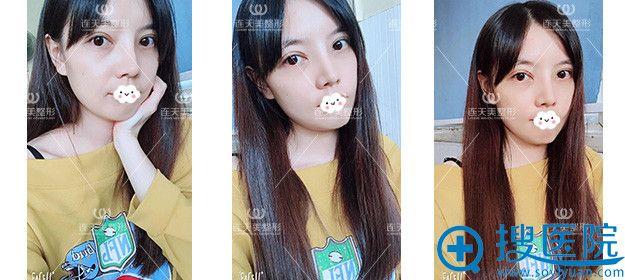 南京连天美双眼皮术后真实案例
