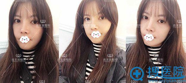 南京连天美假体隆鼻术后真实案例