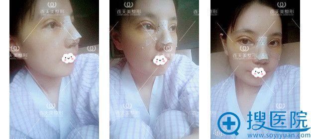 南京连天美双眼皮+假体隆鼻术后恢复过程