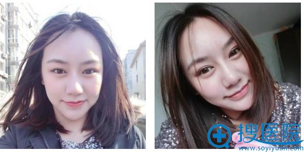 这是美版超声刀治疗三个月的恢复照片