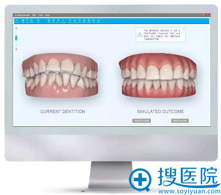 隐适美隐形牙齿矫正口内扫描仪iTero案例效果图