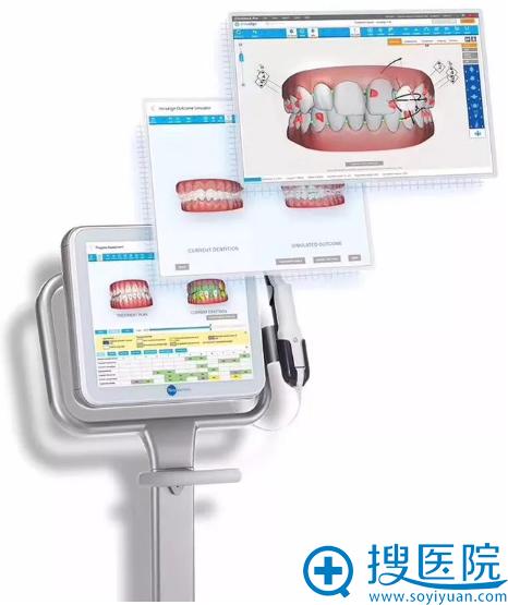 隐适美隐形牙齿矫正口内扫描仪iTero