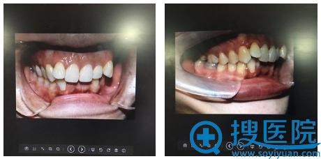 牙齿内部真实情况