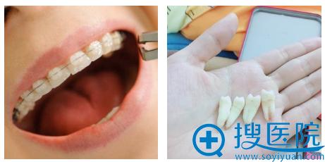 做隐形托槽牙齿矫正前拔了四颗牙