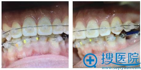 做完隐形托槽牙齿矫正三个月的图片